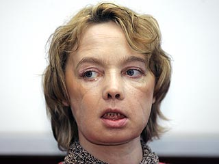 Face Transplant Patient Meets the Press