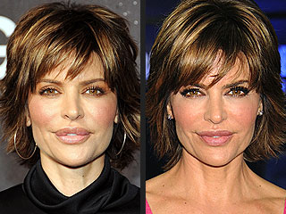 Lisa Rinna's Lip Surgery Didn't Make Harry Hamlin Smile at First