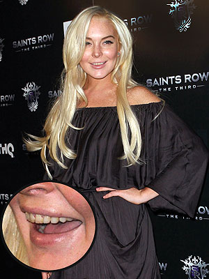 Lindsay Lohan Rotten Teeth Pictures
