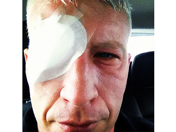 Anderson Cooper Blinded Temporarily