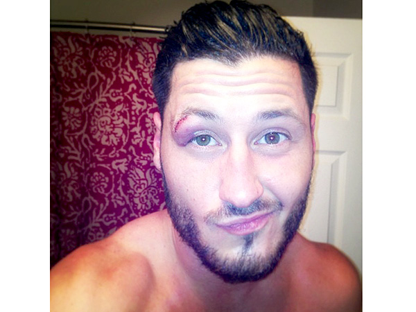 Dancing with the Stars finale: Val Chmerkovskiy Gets Stitches After Injury