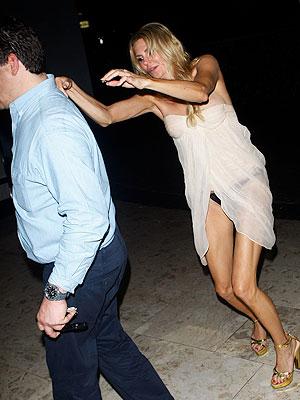 Brandi Glanville Breaks Her Hand Days After Drunken Wardrobe Malfunction