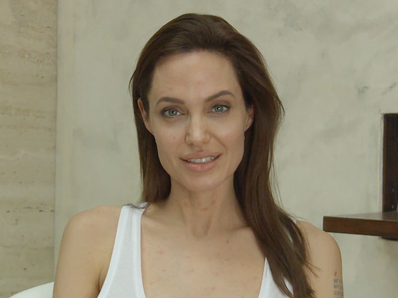 Angelina Jolie Announces in Video: I Have Chicken Pox! - Medical ... Angelina Jolie