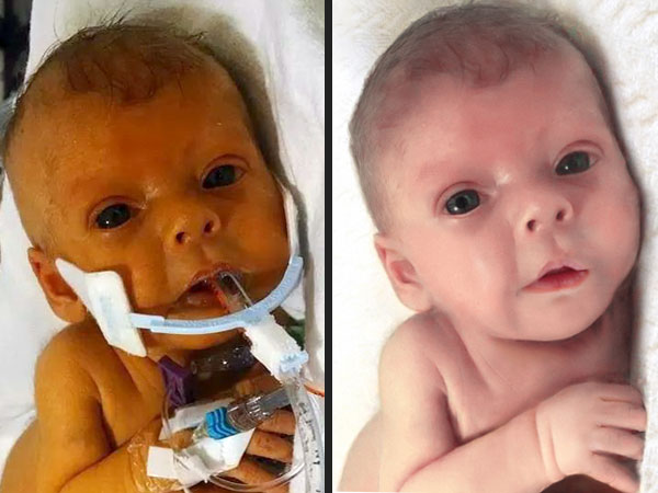 Reddit Users Photoshop Photo of Nathan Steffel's Late Baby Daughter