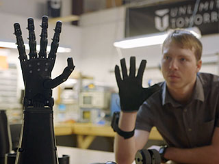 This 19-Year-Old is Building a Cheaper, Better Prosthetic Limb (VIDEO)