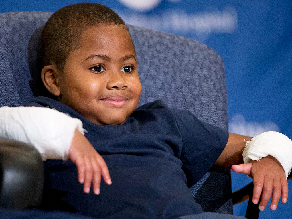 World's First Bilateral Hand Transplant on a Child