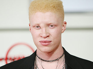 'This Isn't About Pity:' Model Shaun Ross's Experience with Tanzanian Refugees with Albinism