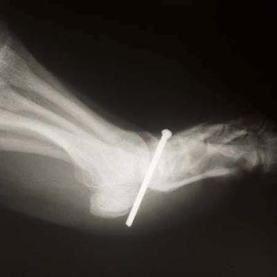 x-ray of nail gun injury in foot