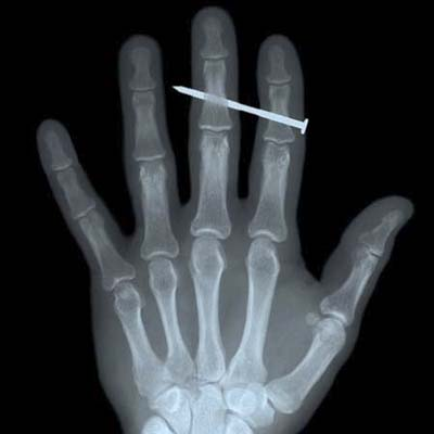 x-ray of hand with nail gun injury